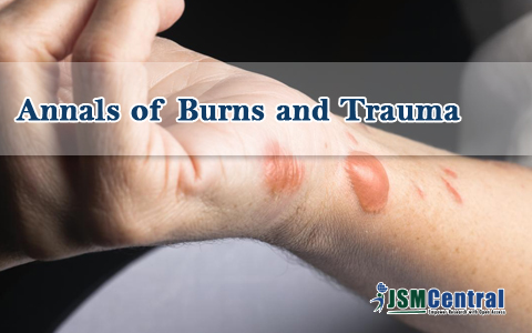 Annals of Burns and Trauma