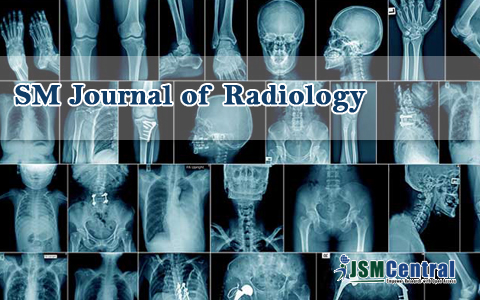 SM Journal of Radiology