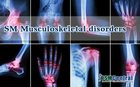 SM Musculoskeletal Disorders